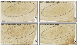 CB1 cannabinoid receptor determines metabolic responses to diet and leptin